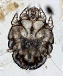sarcopticmites