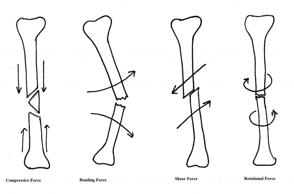 Figure 1 Forces on a fracture